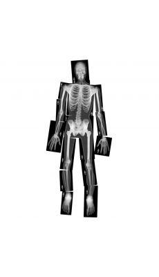 Radio du corps humain - Pochette de 18